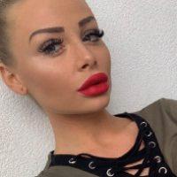 Lisa - Schöne Lippen von KMED